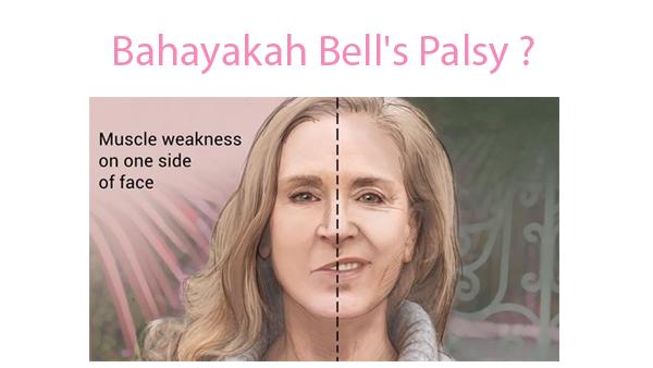 Bahayakah Bells Palsy